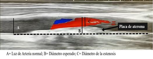 C:\Users\Nafxiel Brito\Documents\Proceso publicar\Dixon castro\fig. 1. Método de medición el porcentaje de oclusión de la arteria carótida..jpg